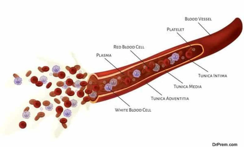 Effective exercises to prevent blood clots