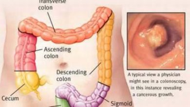 Photo of Understanding common signs and symptoms of colon cancer