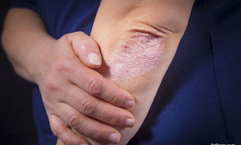 Different types of psoriasis and their proper diagnosis
