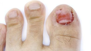 Photo of Home remedies for toenail fungus