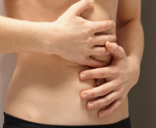 How to deal with Ulcerative Colitis