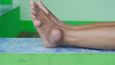Photo of Home remedies for Gout