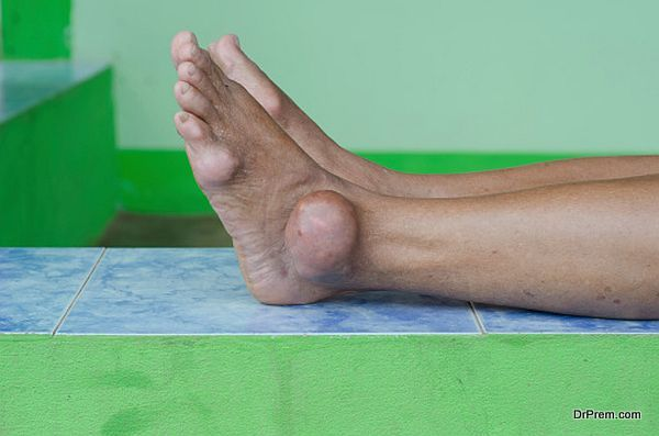 Home remedies for Gout
