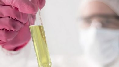 Photo of Urine color can be an indication of your health
