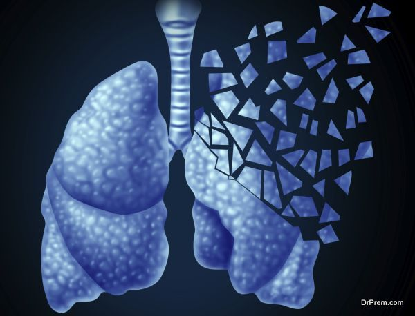 Photo of Crackling in the Lungs: 8 most common causes for the condition