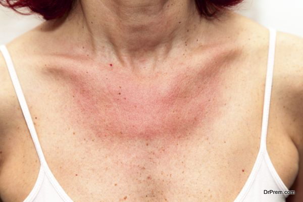 Woman with sunburns and Allergic reaction