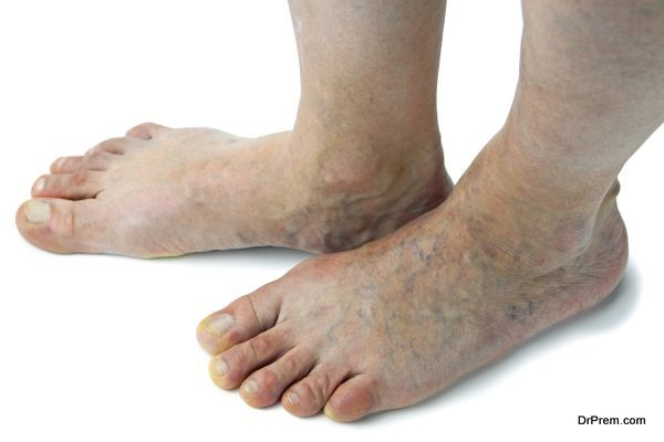 Photo of DIY tips and ideas for treating spider veins
