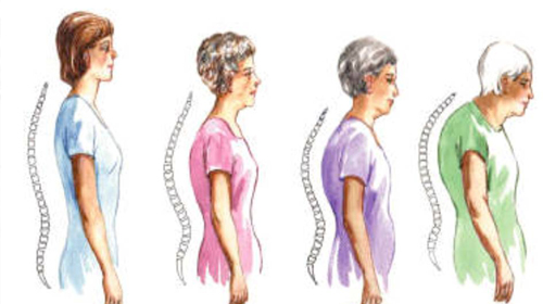 Photo of Osteoporosis risk factors you need to be aware of