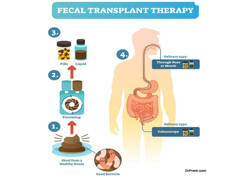 Photo of Surprising Health Benefits of Fecal Transplants
