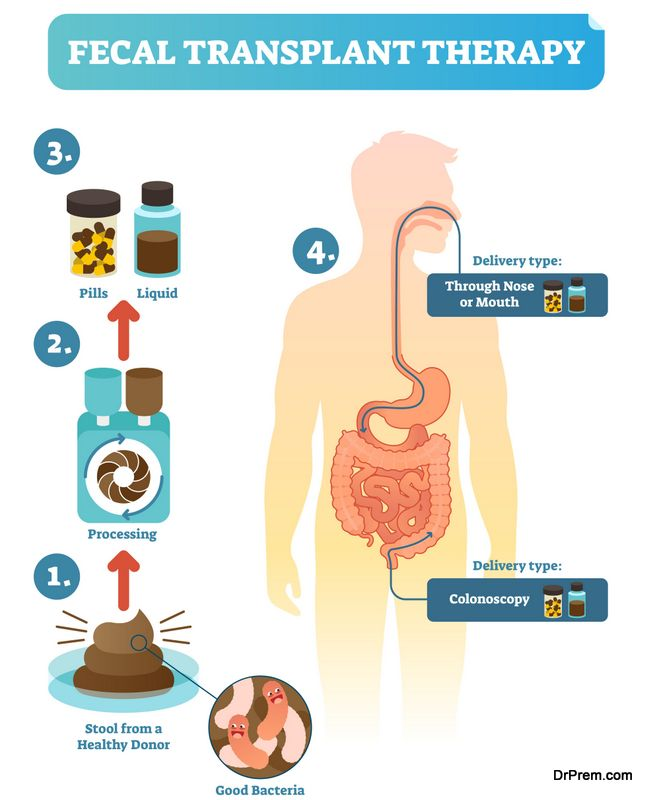 Health Benefits of Fecal Transplants