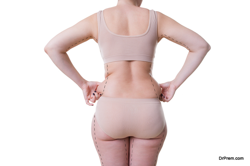 Photo of Understanding the Myths and Facts about Cellulite