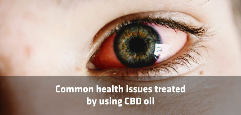 Common Health Issues Treated Using CBD Oil